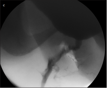 A new technique of double-face buccal graft urethroplasty for female urethral strictures